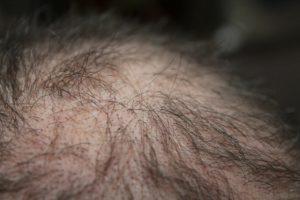 creatine-hair-loss